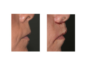 Subnasal Lip Lift with Lateral Vermilion Advancements result side view Dr Barry Eppley Indianapolis