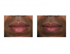 Upper and Lower Lip Reduction results Dr Barry Eppley Indianapolis