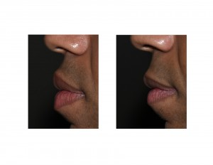 Upper and Lower Lip reduction results side view Dr Barry Eppley Indianapolis