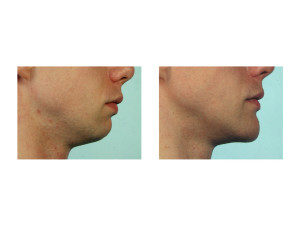 Vertical Lengthening Chin Implant result 3 Dr Barry Eppley Indianapolis