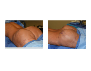 2nd Stage Fat Injections after Buttock Implants Dr Barry Eppley Indianapolis