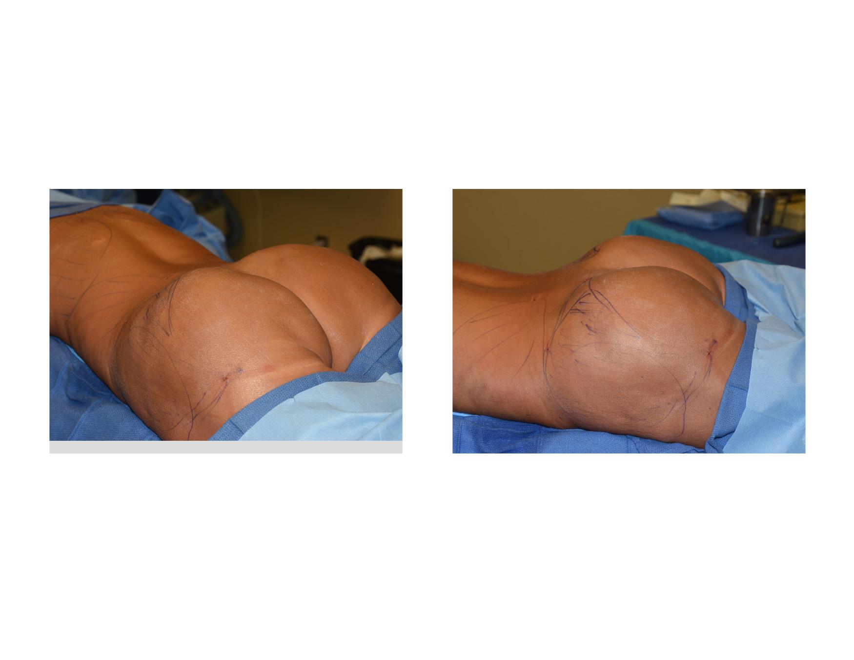 Implant Butt 49
