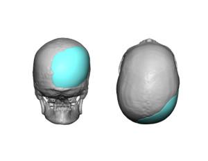 Adult Occipital Plagiocephaly Custom Skull Implant Design Dr Barry Eppley Indianapolis