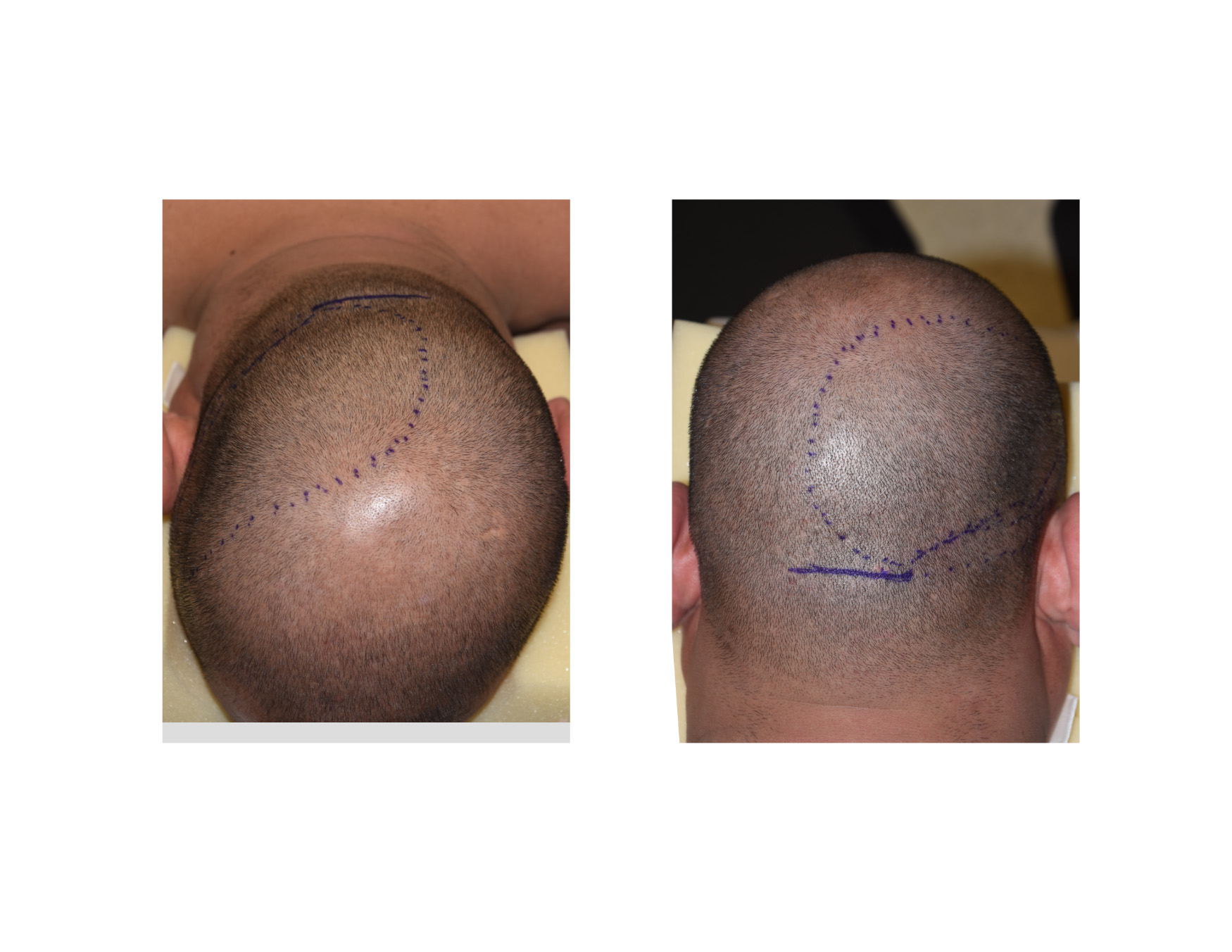 Adult with plagiocephaly accept. opinion
