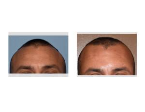 Anterior Sagittal Ridge Skull Reduction result immediate Dr Barry Eppley Indianapolis