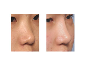 Asian Rib Graft Rhinoplasty result oblique view