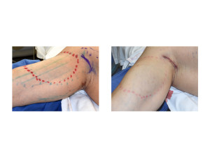 Biceps Implants Incision and Closure Dr Barry Eppley Indianapolis