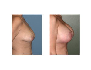 Breast Implants with Nipple Lift result side view Dr Barry Eppley Indianapolis