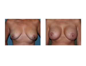 Breast Implants with Nipple Lift results front view Dr Barry Eppley Indianapolis