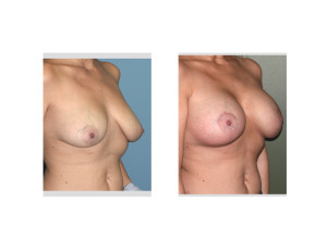 Breast Implants with Nipple Lift results oblique view Dr Barry Eppley Indianapolis