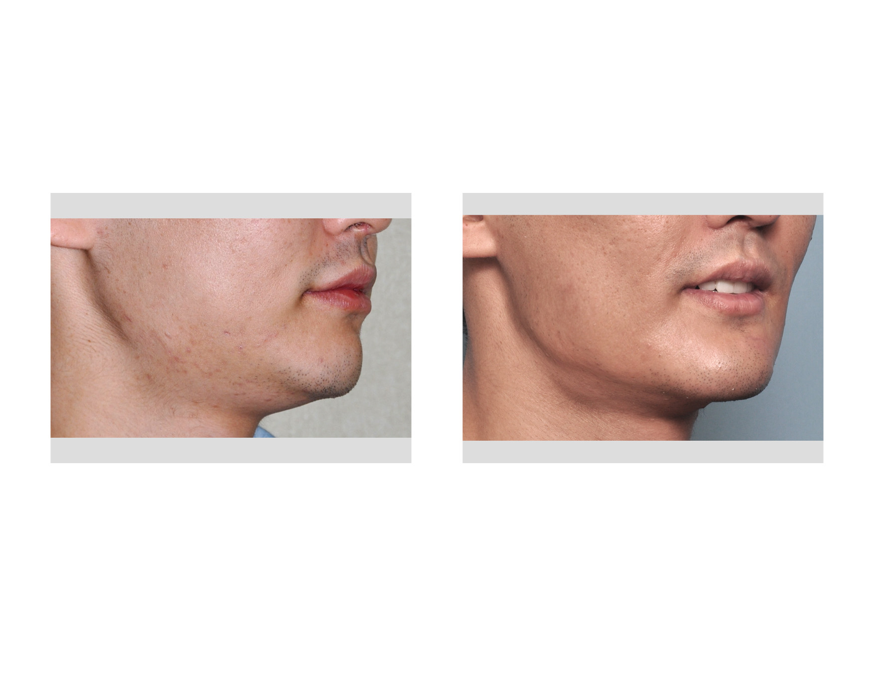 explore plastic surgery dr barry eppley plastic surgeon it is hard to argue the jawline effect of a one piece implant that extends around the chin from angle to angle not only does it make a uniform