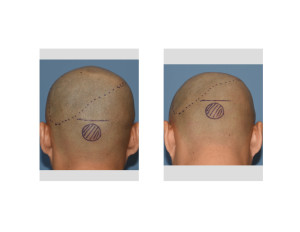 Custom Skull Implant and Occipital Knob Reduction Incision Marking Dr Barry Eppley Indianapolis