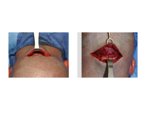 Custom Skull Implant and Occipital Knob Reduction incisional access Dr Barry Eppley Indianapolis
