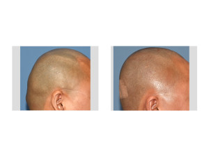 Custom Skull Implant and Occipital Knob Reduction result right side view Dr Barry Eppley Indianapolis