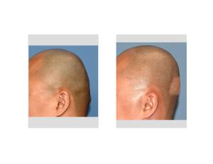 Custom Skull Implant and Occipital Knob Reduction results side view Dr Barry Eppley Indianapolis