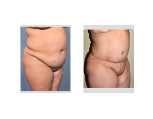 Extended Tummy Tuck of Body Lift Indianapolis Dr Barry Eppley