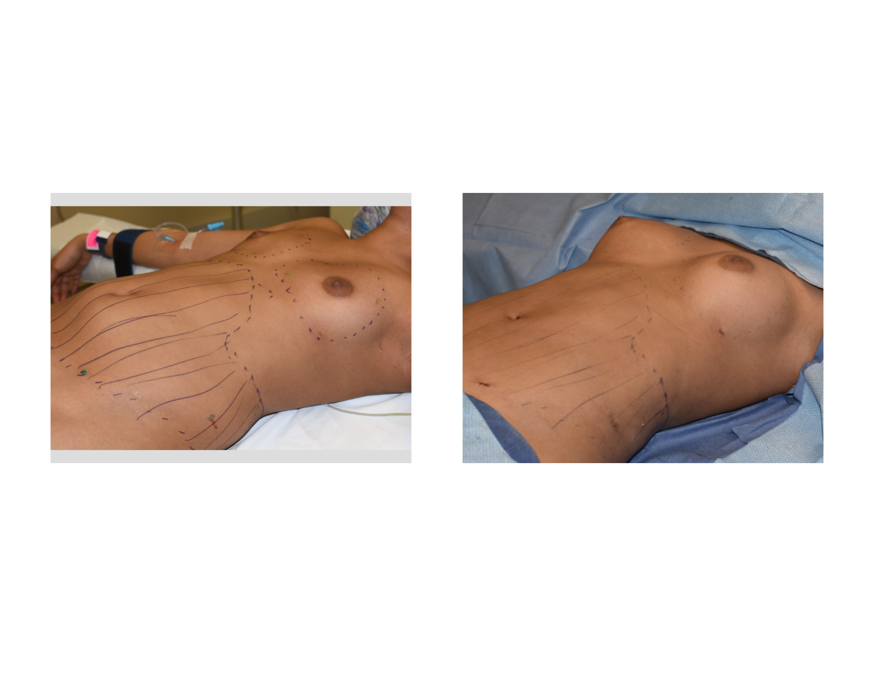 Breast Augmentation With Own Fat 53