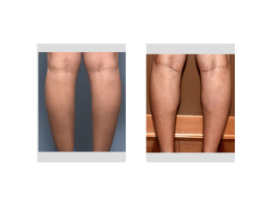 Female Inner Calf Implants result back view Dr Barry Eppley Indianapolis