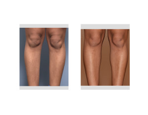 Female Inner Calf Implants result front view Dr Barry Eppley Indianapolis