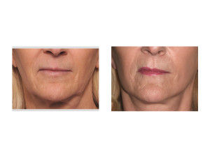 Female Lower Facelift result front view Dr Barry Eppley Indianapolis