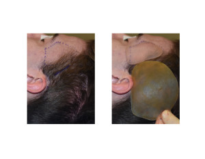 Head Widening Implants (anterior and posterior temporal implants Dr Barry Eppley Indianapolis