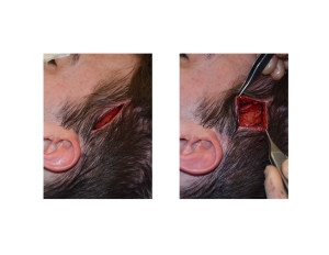 Head Widening Implants (incision and subfascial dissection) Dr Barry Eppley Indianapolis