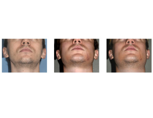 Sequential Custom Jawline Implant Swelling submental view
