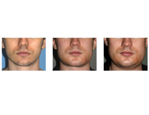 Sequential Custom Jawline Implant swelling front view