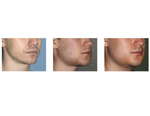 Sequential Custom Jawline Implant swelling right oblique view