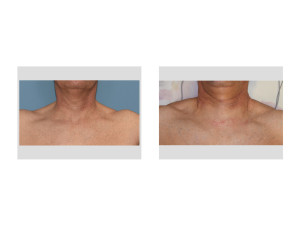 Trapezius Muscle Implants immediate result Dr Barry Eppley Indianapolis
