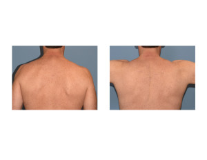 TrapeziusMuscle Implants preop Dr Barry Eppley Indianapolis