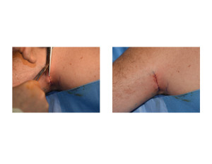 Triceps Implants Incision Closure Dr Barry Eppley Indianapolis