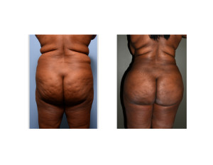 african-american Back and Flank Liposuction result back view Dr Barry Eppley Indianapolis