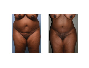 african-american abdominal liposuction result front view Dr Barry Eppley Indianapolis