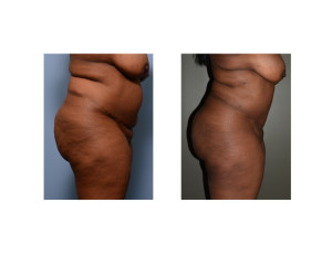 african-american abdominal liposuction result side view Dr Barry Eppley Indianapolis
