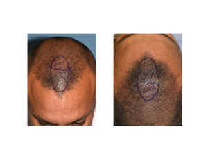 anterior sagittal skull reduction markings dr barry eppley indianapolis