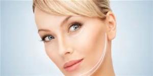 facial feminization surgery