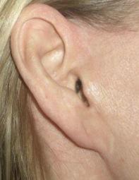 pixie ear deformity