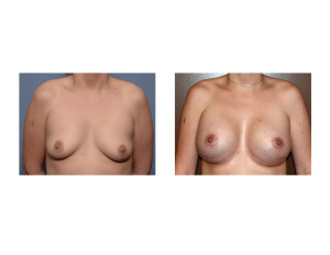 Breast Implant Surgery with IMF lowering results front view Dr Barry Eppley Indianapolis