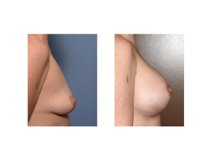 Breast Implant Surgery with IMF lowering results side view Dr Barry Eppley Indianapolis