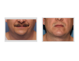 Custom Jawline Implant and Submentoplasty result front view Dr Barry Eppley Indianapolis