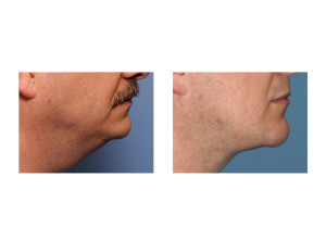 Custom Jawline Implant and Submentoplasty result side view Dr Barry Eppley Indianapolis