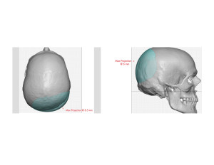 Custom Occipital Implant dimensions Dr Barry Eppley Indianapolis