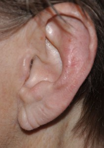 Earlobe Aging Dr Barry Eppley Indianapolis
