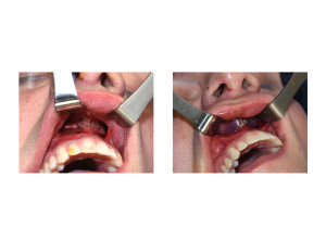 Paranasal Implant Placement Dr Barry Eppley Indianapolis