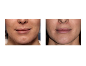 Perioral Mound Liposuction result front view Dr Barfry Eppley Indianapolis