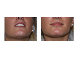 Postive Saline Injection Test for Chin Dimple Treatment Dr Barry Eppley Indianapolis