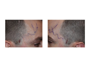 Temporal Arter Ligation incisions Dr Barry Eppley Indianapolis