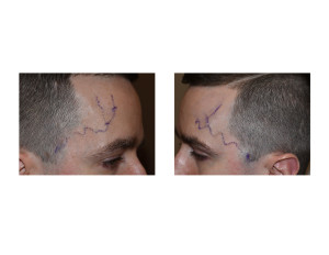 Temporal Artery Ligation Dr Barry Eppley Indianapolis