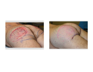 Ultimate Buttock Makeover intraop left oblique view